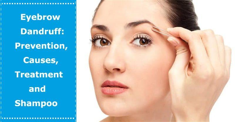 eyebrow dandruff causes treatment shampoo